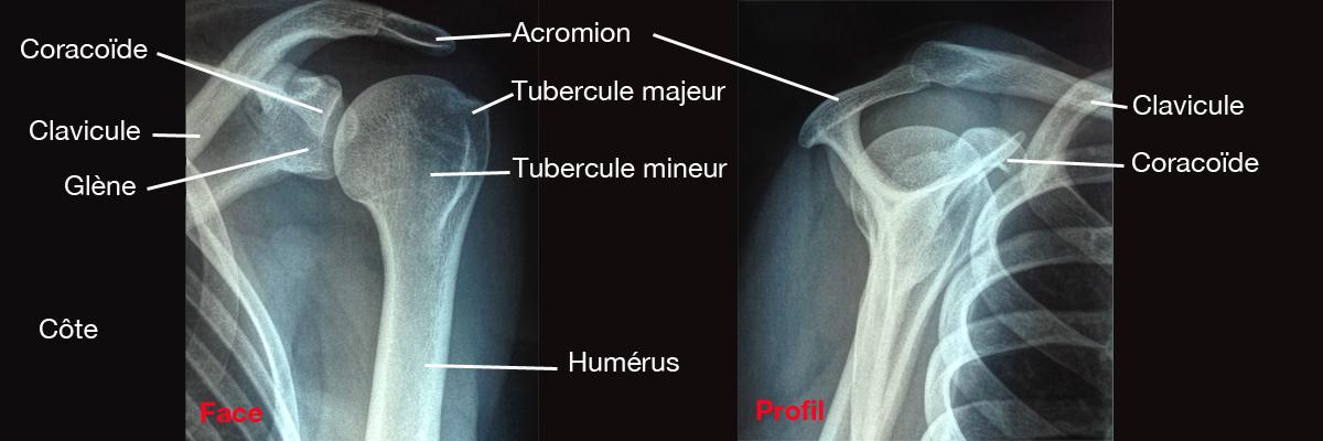 Radiographie épaule
