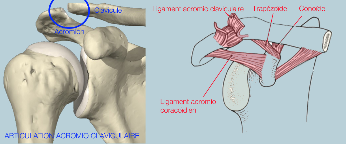 Acromio claviculaire1