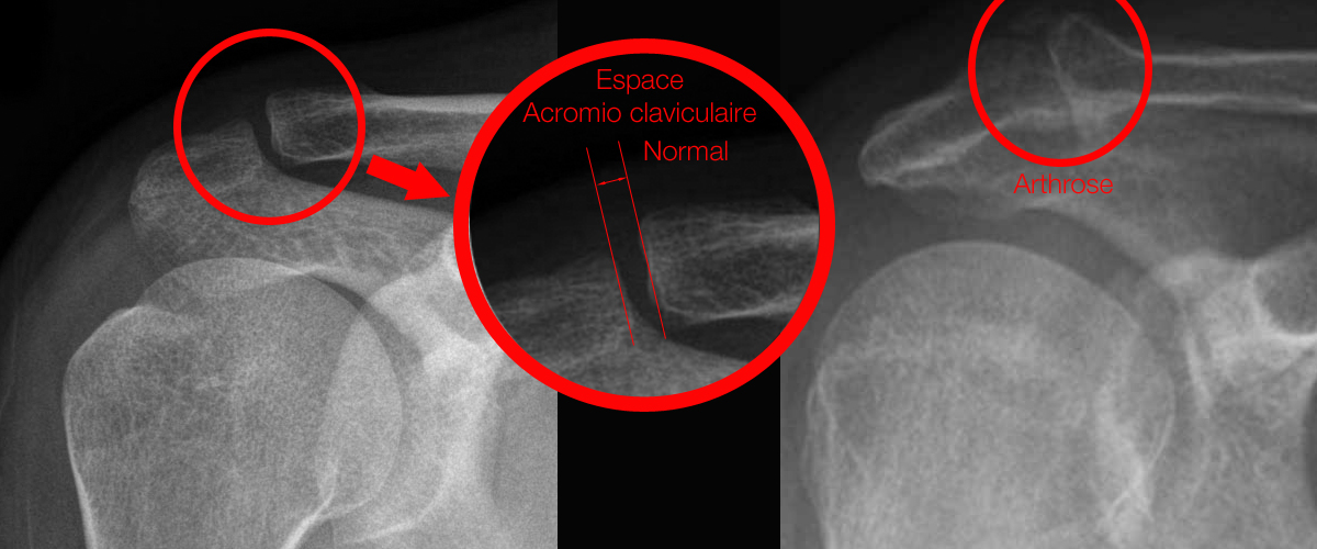 Acromio claviculaire2