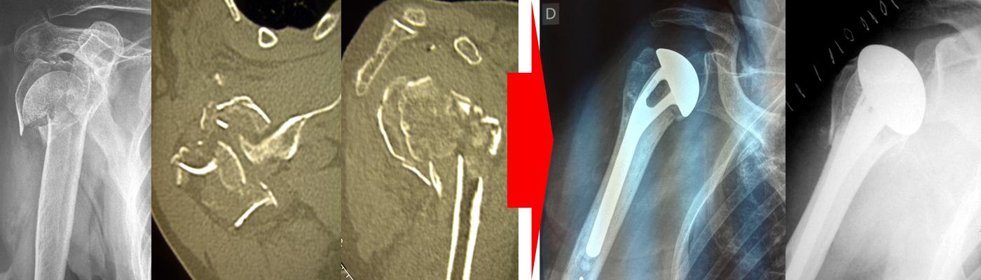 Prothèses fractures