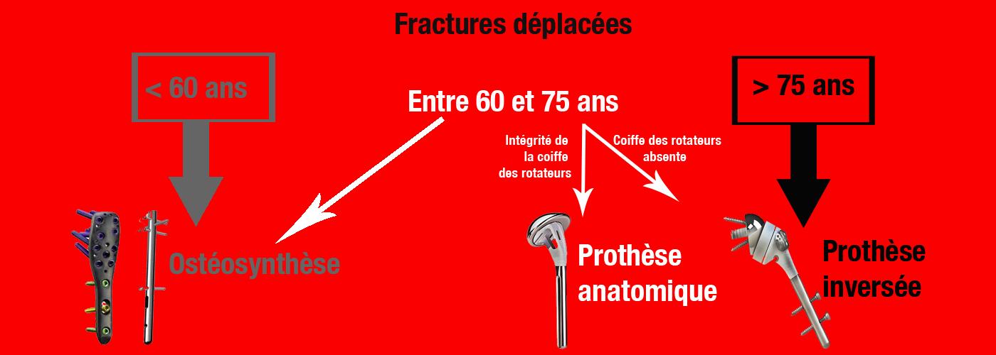 fractures déplacées
